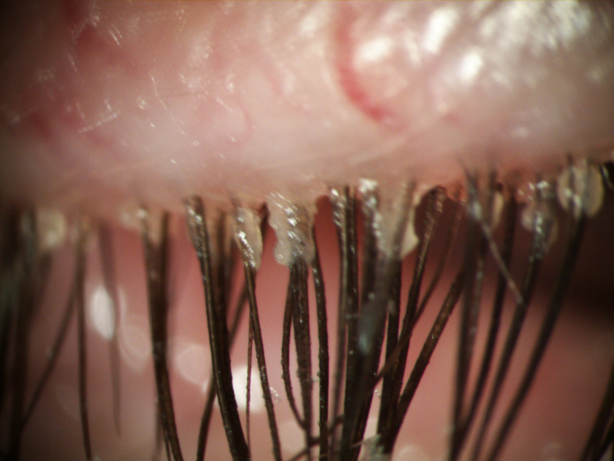 Blepharitis What Is It Painless Treatments At Dry Eye Doctor